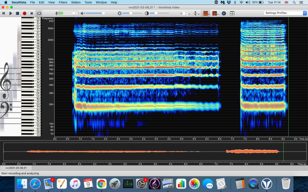 Image of two resonances of Voce Vista